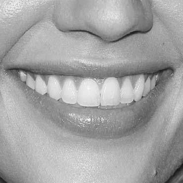 esthétique dentaire chez cleage