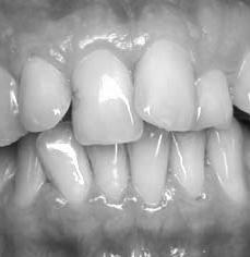 Alignement dentaire a Lyon chez Cleage