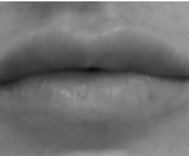 Ourlet des lèvres