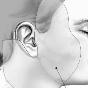 le lifting cervico-facial chez cleage