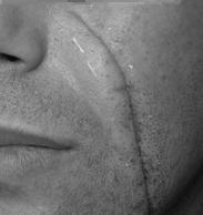 Cicatrices à traiter au centre laser cleage