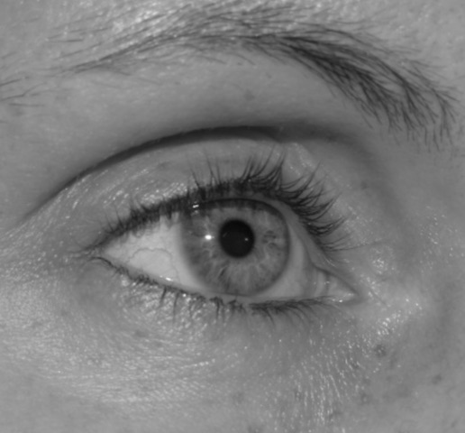 oeil creux cleage Lyon