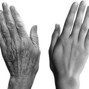 Rajeunissement des mains à lyon