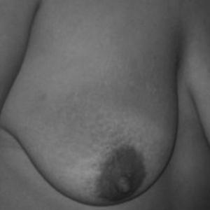 Prothèses mamaire à Lyon