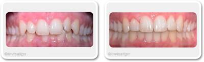 Orthodontie invisible