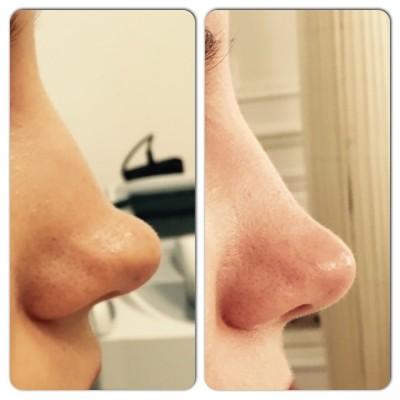rhinoplastie médicale avant-après cleage