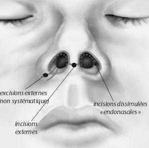 Chirurgie du nez a Lyon