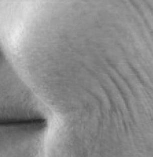 peau frippée chez cleage