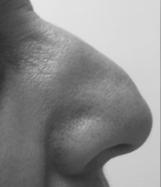 Pointe du nez tombante à traiter chez Cleage