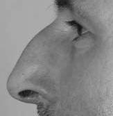 bosse sur le nez à traiter chez Cleage